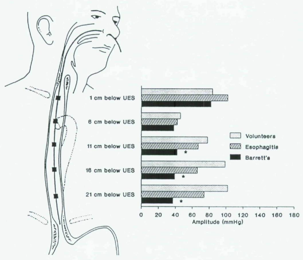 Does Esophageal Dysfunction In Cle Influence Bolus Propulsion
