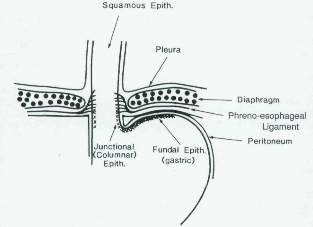 What are the characteristic features of stricture in Barrett\'s mucosa?