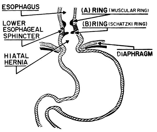 What Is The Information Given By Esophageal Manometry In